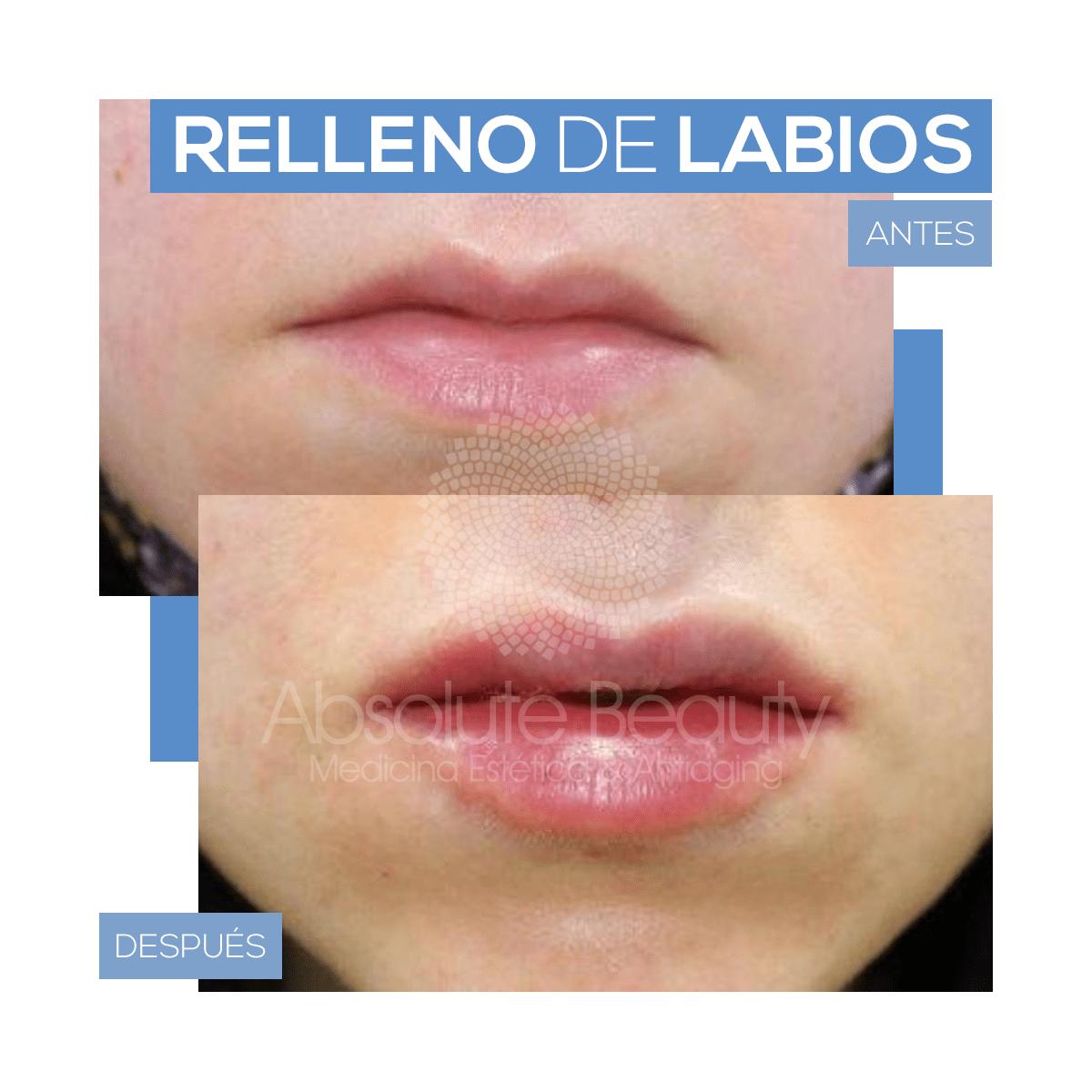Relleno y aumento de Labios en Córdoba